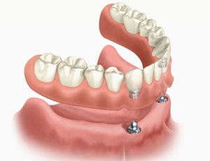 Gebitsprothese op implantaten